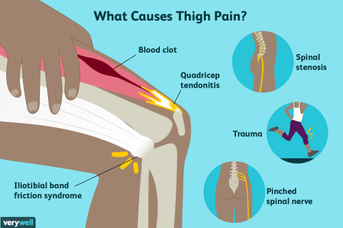 thigh-pain-causes-treatment-and-when-toacc310e6ba11340b.png